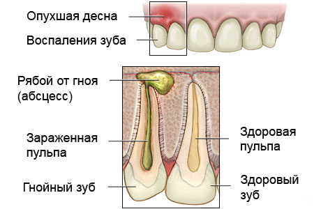 Отек после удаления зуба дренаж